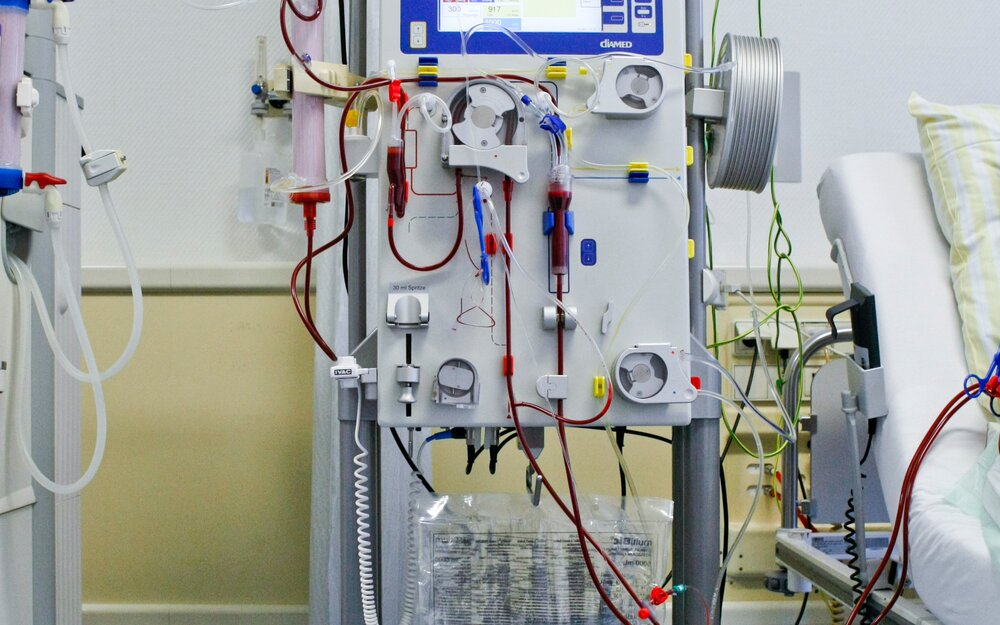 Filter unit with scale to keep  the fluid balance under control